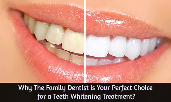 Why The Family Dentist is Your Perfect Choice for a Teeth Whitening Treatment