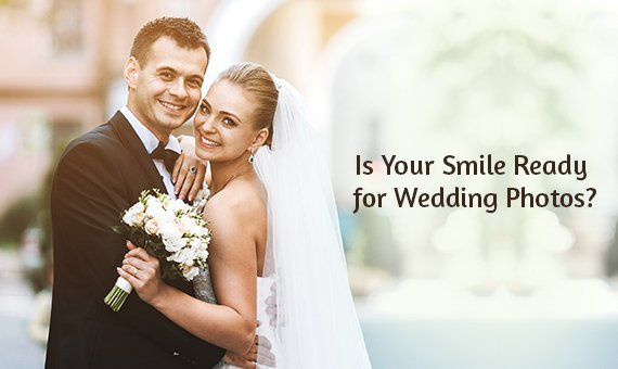 Is Your Smile Ready for Wedding Photos?