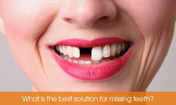 Missing a teeth